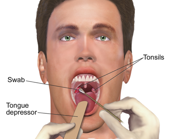 Tonsil infections