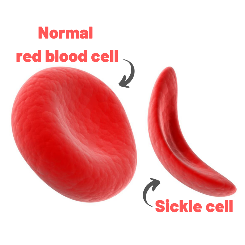 Sickle Cell - Warrior's Health Guide