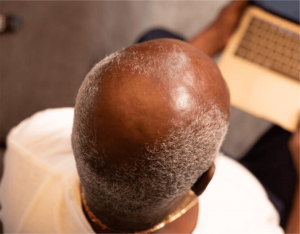 baldness in man