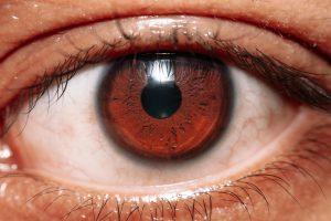 AMD - age-related macular degeneration